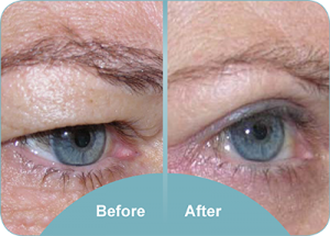 Eyelid Surgery - Charles Davis, Wellington Plastic Surgeon