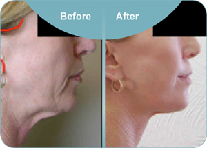 face lift with smas flap and platysmaplasty