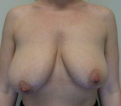 breast-asymmetry-nz-1