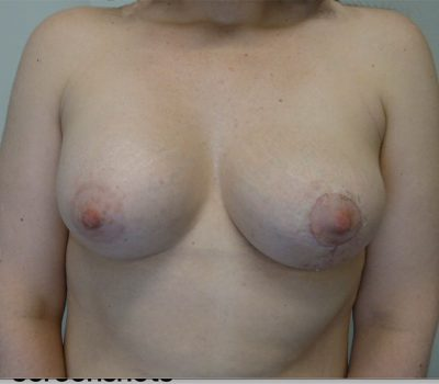 breast-asymmetry-nz-b