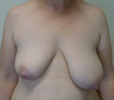 breast-asymmetry- wellington-nz-1
