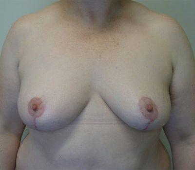 breast-asymmetry-wellington-nz-2