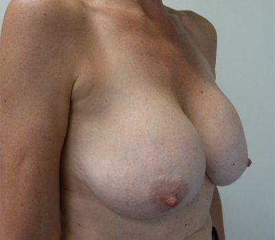 breast-implant-exchange-nz-1
