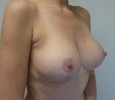 breast-implant-exchange-nz-2