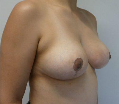 breast-lift-masteopxy-nz-2