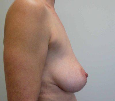 breast-lift-nz-1