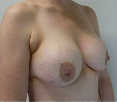 total-capsulectomy-breast-implant-nz-1