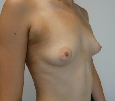 tuberous-breast-implant-new-zealand-1