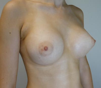 tuberous-breast-implants-new-zealand-2
