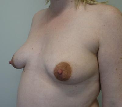 tuberous-breast-new-zealand-1