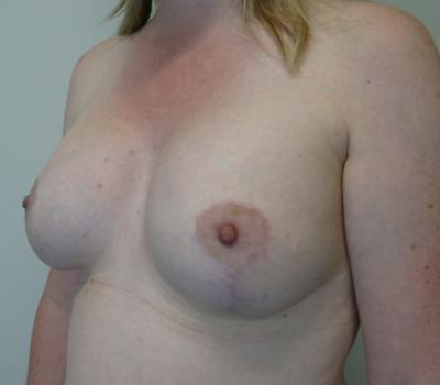 tuberous-breast-new-zealand-2