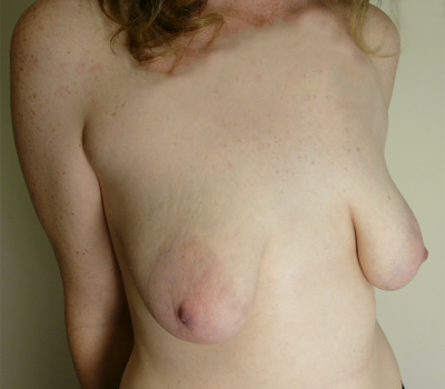tuberous-breast-wellington-nz-1